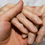 Как убрать шишки на пальцах рук осмотр шишек пальцев рук, пальпация