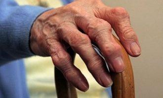 Как убрать шишки на пальцах рук узлы Гебердена