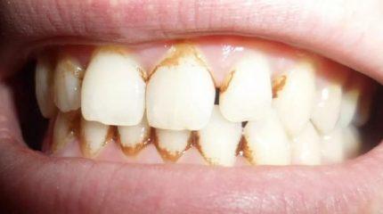 Как убрать налет на зубах: причины появления
