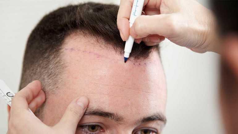 пересадка волос методом fue