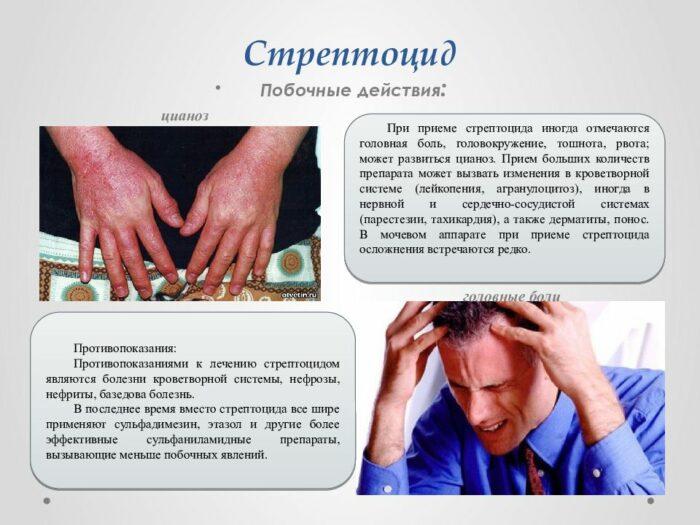 стрептоцид: побочные действия и противопоказания
