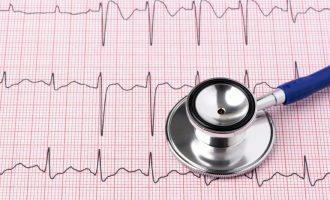 Что показывает ЭКГ сердца у взрослого человека: расшифровка