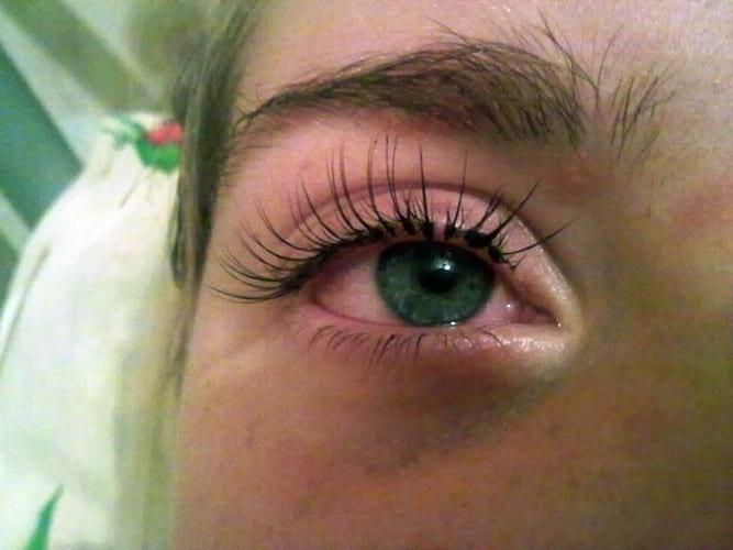первая помощь при химическом ожоге глаз