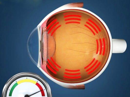 Норма глазного давления
