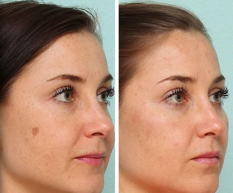 Как делают удаление пигментных пятен на лице лазером
