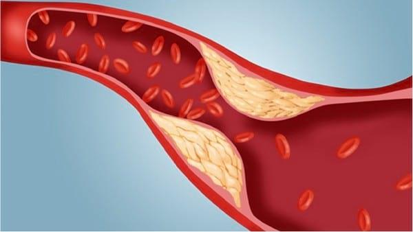 норма холестерина по возрасту