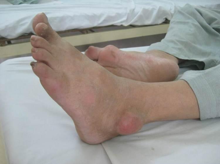Лечение отложения солей в суставах народными средствами