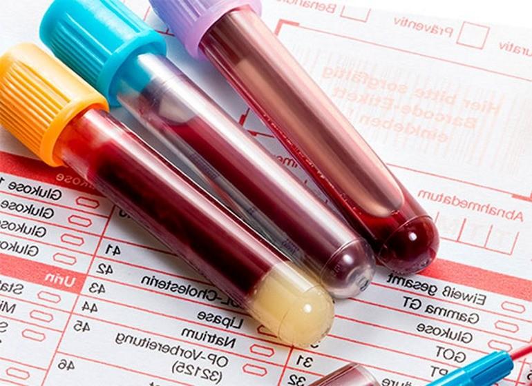 Что значит анализ крови на антитела