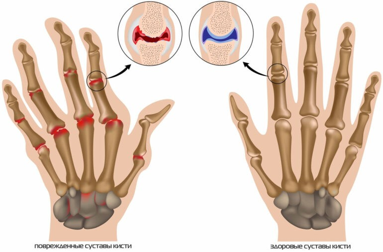 лечение шишек на пальцах рук народными средствами