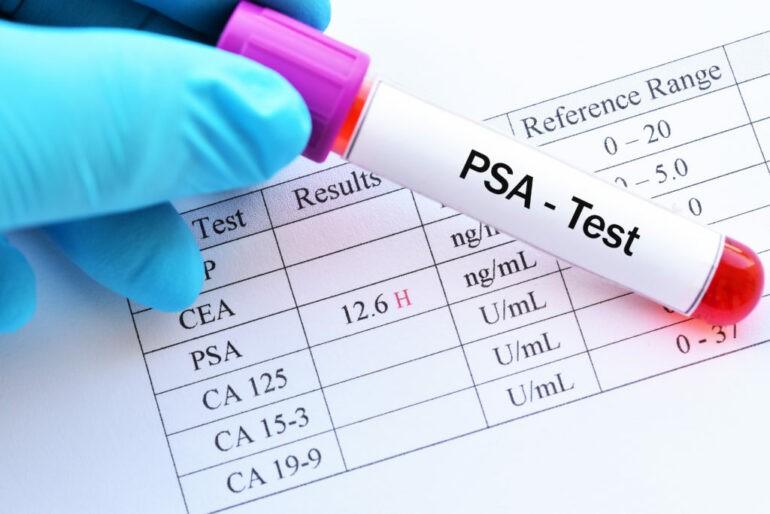 что показывает анализ крови на ПСА