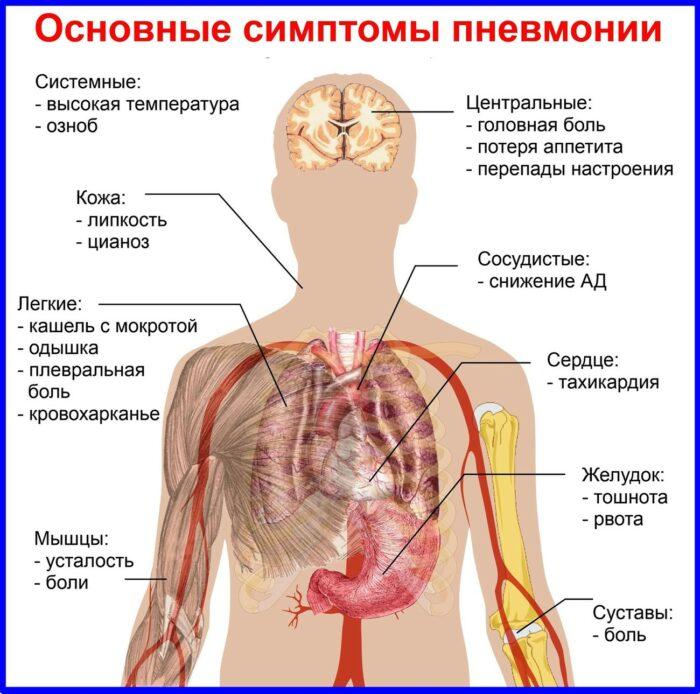 пневмония симптомы