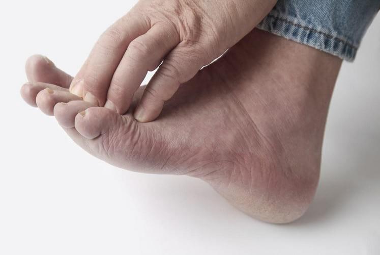 мази от грибка между пальцами