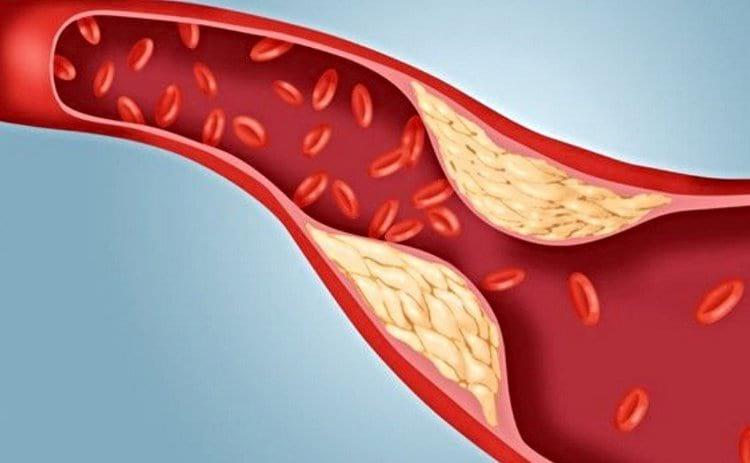 Высокий уровень холестерина в крови