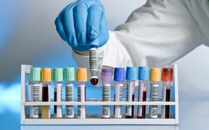 тест на иммуноглобулины