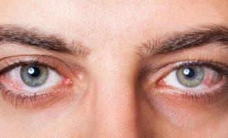 Болезни глаз у человека: список заболеваний с описанием симптомов