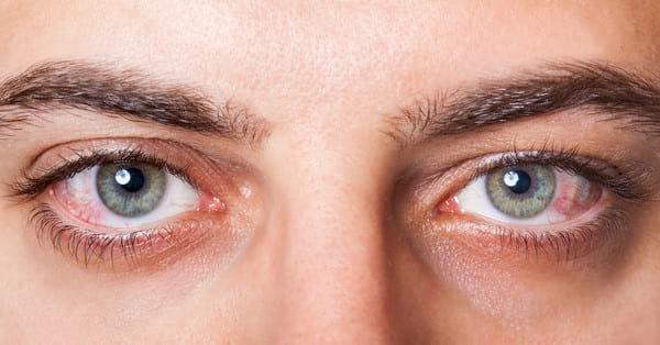 Болезни глаз у человека: список заболеваний, виды, симптомы