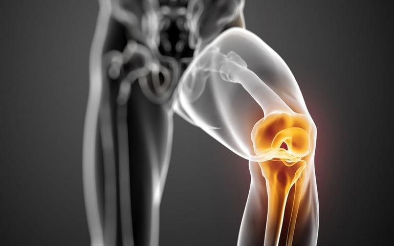 Хруст при ходьбе в коленном эндопротезе