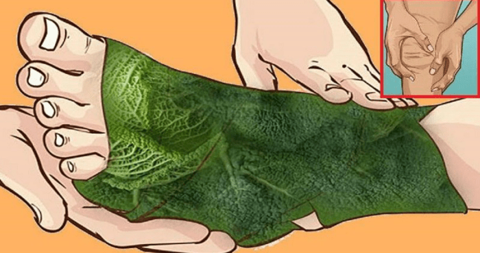 лечение варикоза капустой