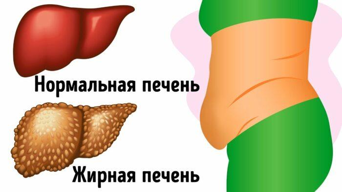 увеличенная печень