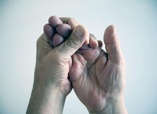 Почему немеет правая рука