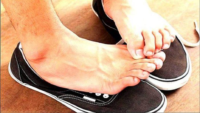 вспотевшие ноги