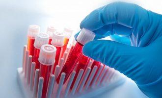 Что значит повышение креатинина в крови: диагностика и лечение