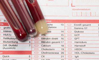 что показывает биохимический анализ крови из вены