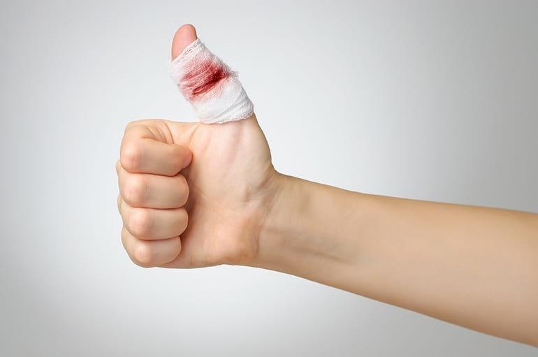 Первая помощь при глубоком порезе пальца: эффективные действия