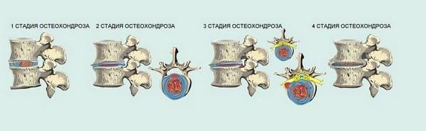 Cимптомы шейного остеохондроза