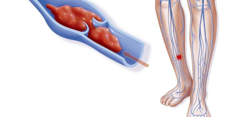 Тромбоз как последствия густой крови