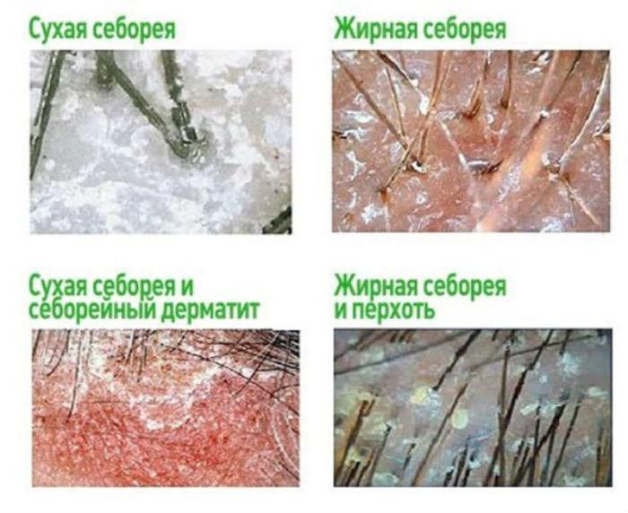 фото разных видов себореи