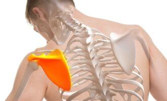 Боли в грудине и под лопатками