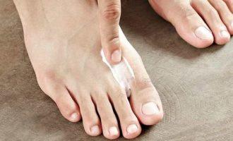 Мази от грибка между пальцами: список препаратов