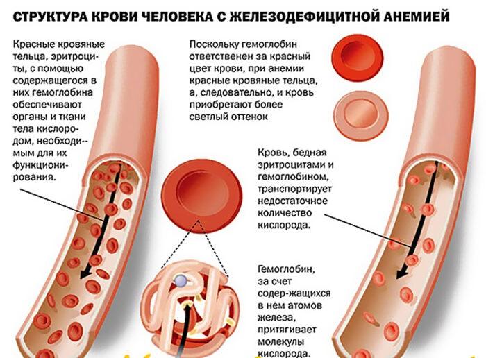 структура крови при скрытой анемии